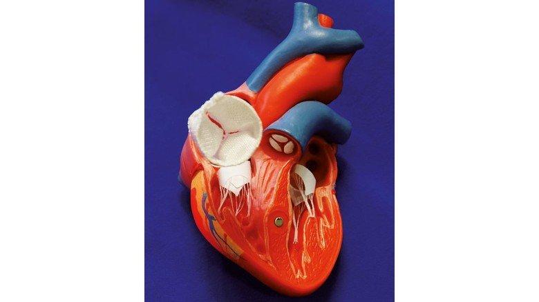 Textile Herzklappe: Sie ersetzt bei Patienten beschädigte Klappen.