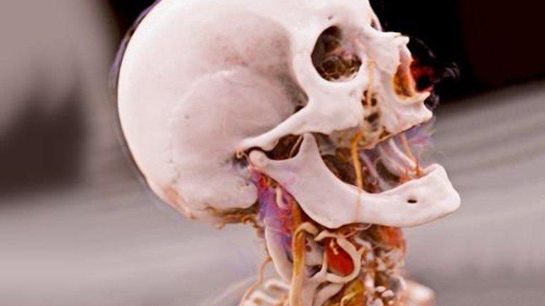 Beleuchtet wie im Film: Inneres des menschlichen Körpers. Foto: Siemens Healthineers/Israelitisches Krankenhaus Hamburg