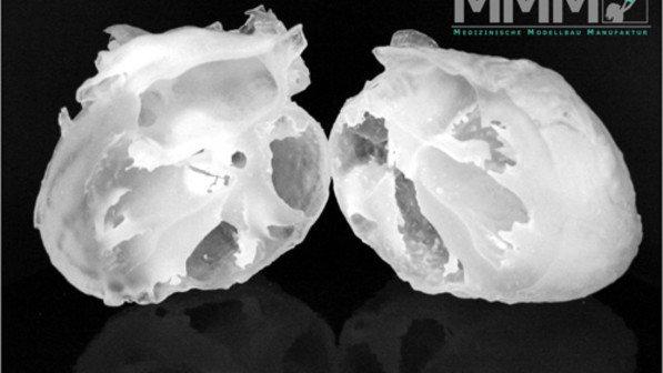 Foto: Medizinische Modellbau Manufaktur
