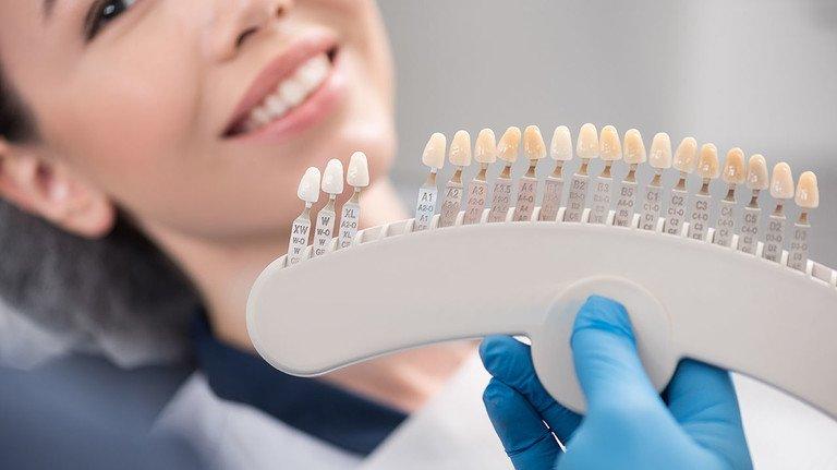 Schöne Zähne: Wer mit Implantaten wieder unbekümmert lächeln möchte, sollte sich vor der Behandlung genau informieren.