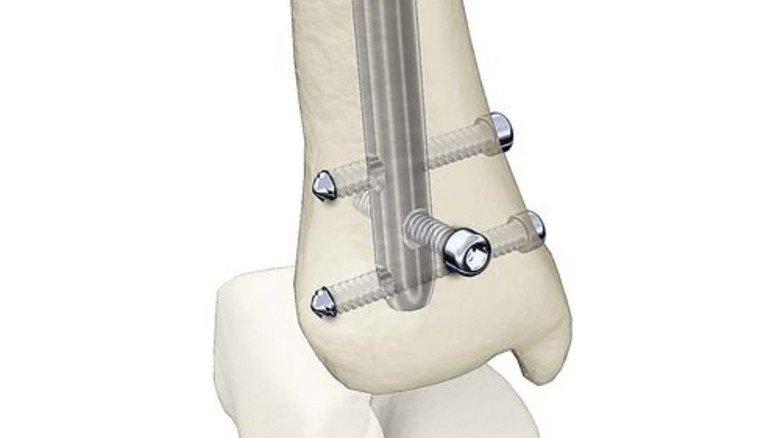 Hilfe nach dem Bruch: Ein Stryker-Nagel fürs Schienbein. Foto: Werk