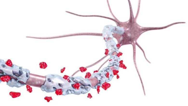 Angriff: Das Bild zeigt die zerstörte Myelinhülle einer Nervenzelle. Foto: Fotolia