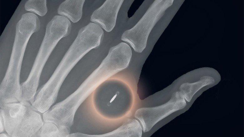Implantat in der Hand: Röntgenaufnahme eines zwischen Zeigefinger und Daumen eingesetzten Chips.