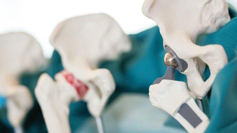Produktion: Ein Implantat mit Budenheim-Beschichtung.Foto: Jan Hosan